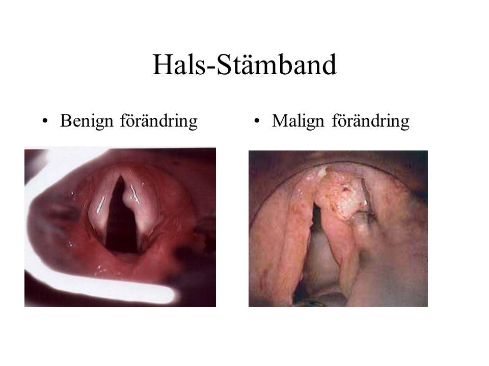 Hals-Stämband •Benign förändring•Malign förändring