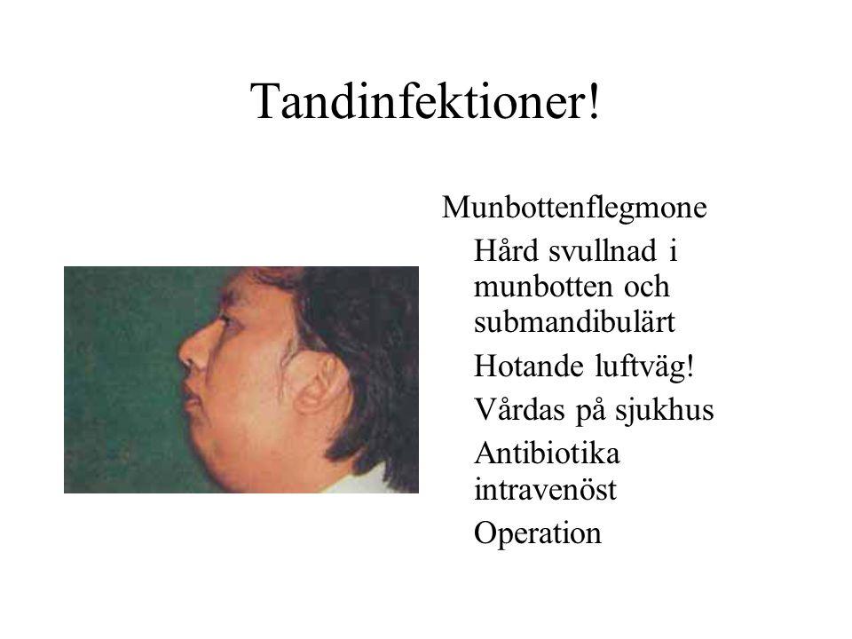 Tandinfektioner! Munbottenflegmone Hård svullnad i munbotten och submandibulärt Hotande luftväg! Vårdas på sjukhus Antibiotika intravenöst Operation