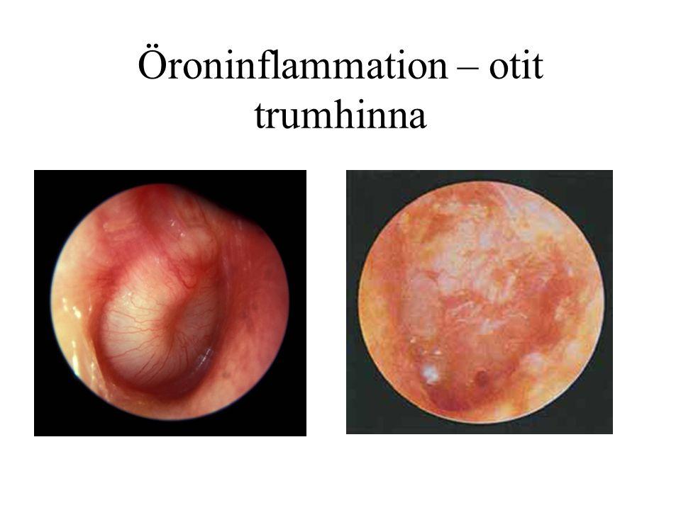Öroninflammation – otit trumhinna