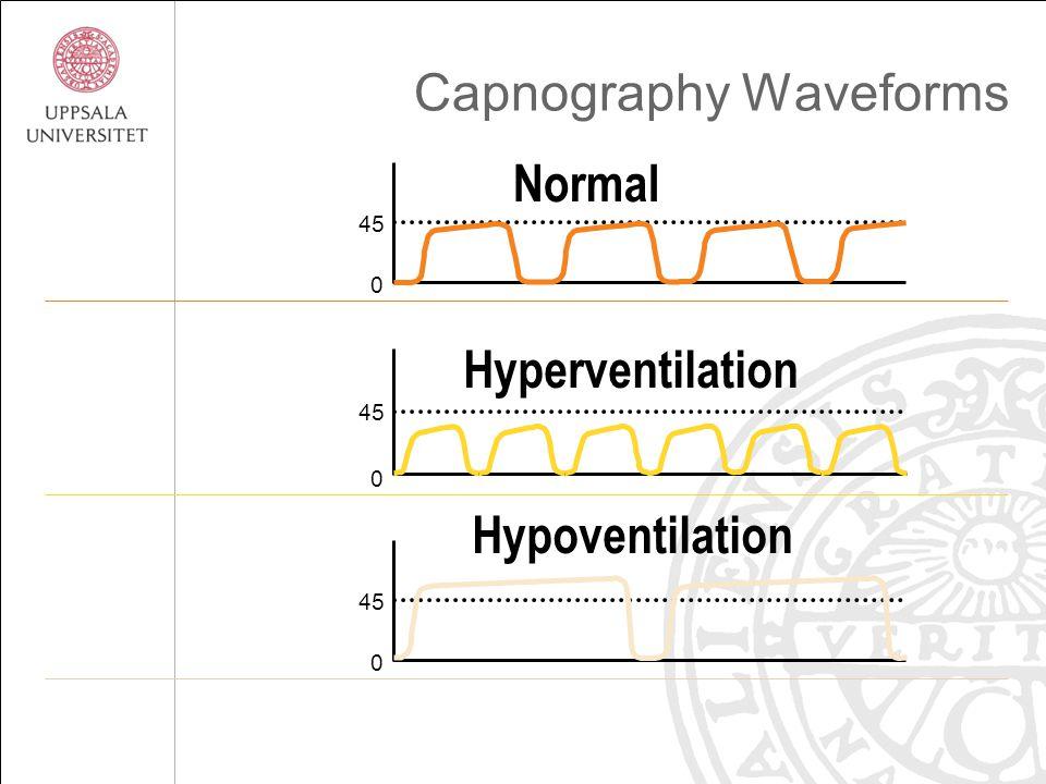 Capnography Waveforms 45 0 0 Hypoventilation Normal Hyperventilation 45 0