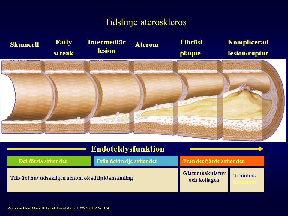 Tidslinje ateroskleros Skumcell Fatty streak Intermediär lesion Aterom Fibröst plaque Komplicerad lesion/ruptur Endoteldysfunktion Anpassad från Stary