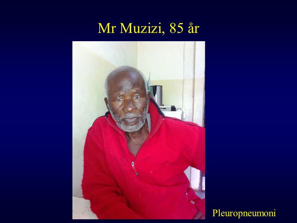 Mr Muzizi, 85 år Pleuropneumoni