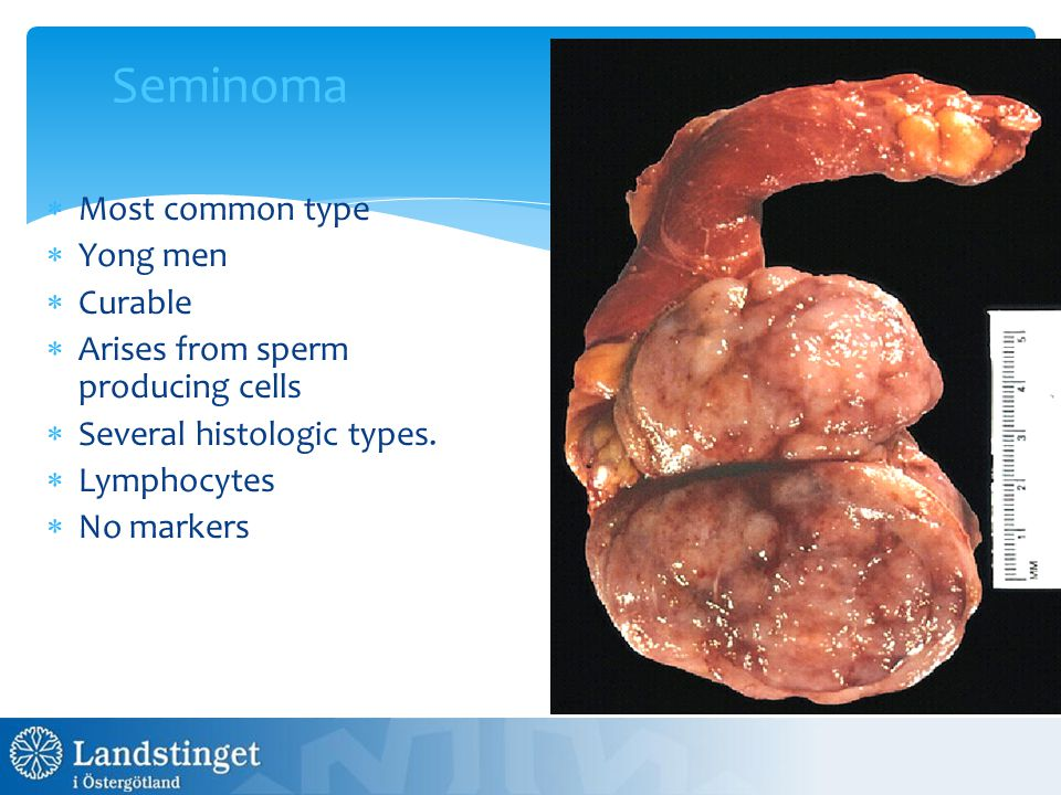 Seminoma  Most common type  Yong men  Curable  Arises from sperm producing cells  Several histologic types.  Lymphocytes  No markers