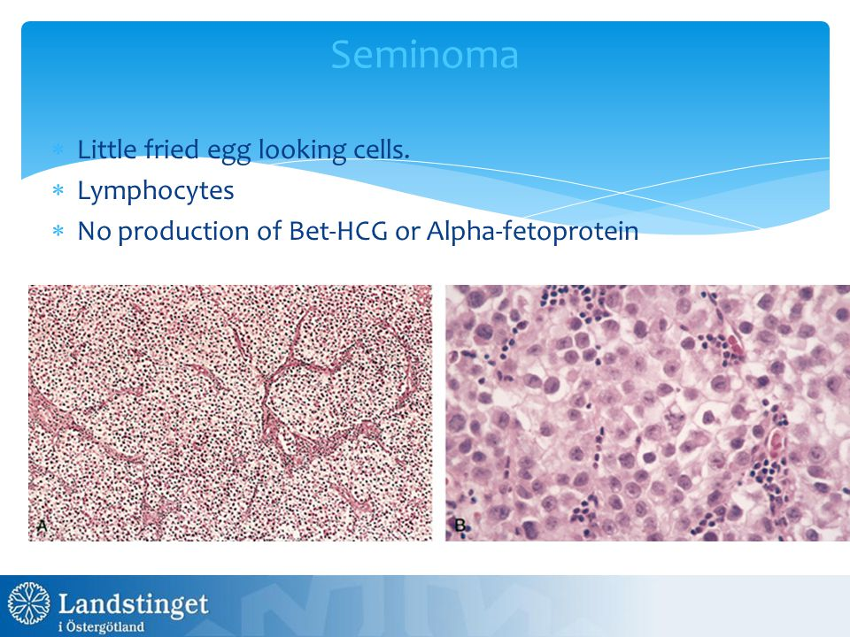 Seminoma  Little fried egg looking cells.  Lymphocytes  No production of Bet-HCG or Alpha-fetoprotein