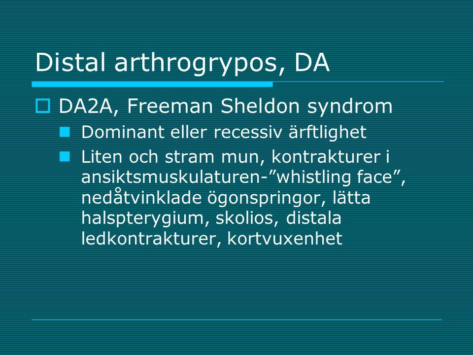 """Distal arthrogrypos, DA  DA2A, Freeman Sheldon syndrom Dominant eller recessiv ärftlighet Liten och stram mun, kontrakturer i ansiktsmuskulaturen-""""wh"""