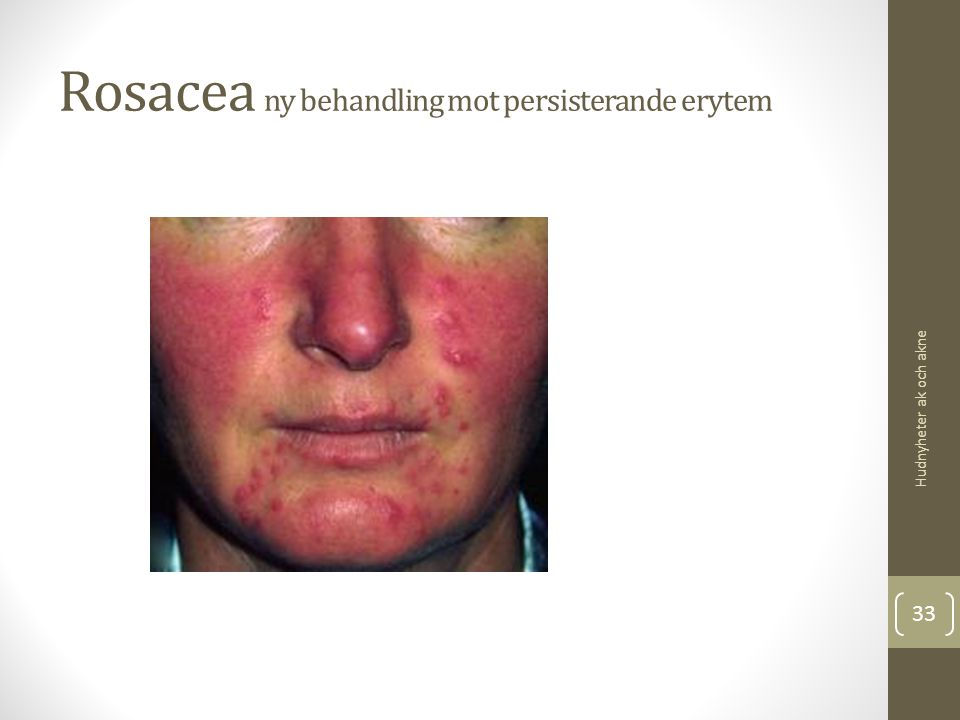Rosacea ny behandling mot persisterande erytem Hudnyheter ak och akne 33