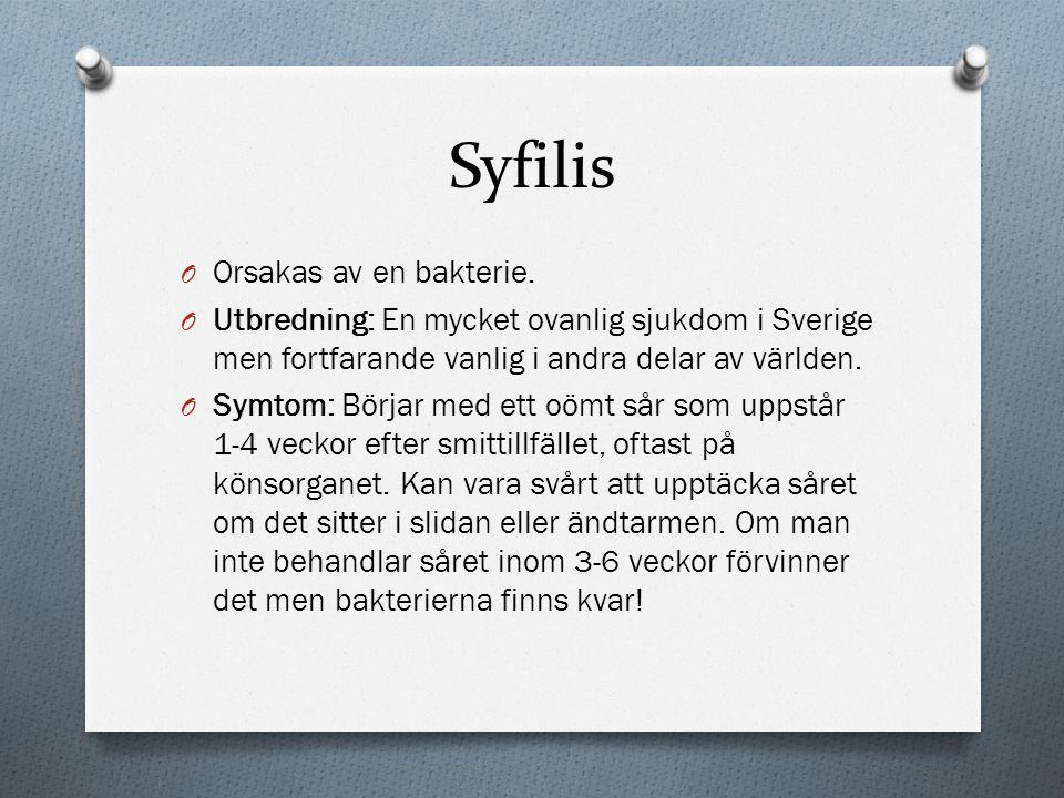 Syfilis O Orsakas av en bakterie. O Utbredning: En mycket ovanlig sjukdom i Sverige men fortfarande vanlig i andra delar av världen. O Symtom: Börjar