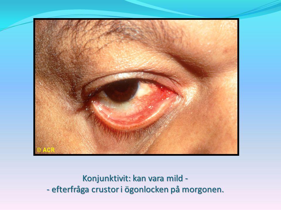 Konjunktivit: kan vara mild - - efterfråga crustor i ögonlocken på morgonen.