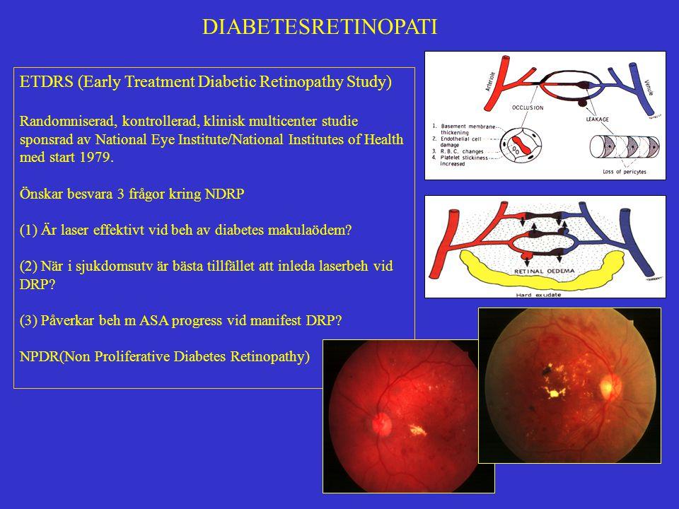 DIABETESRETINOPATI ETDRS Fokal laserbehandling minskar risken för synförlust och skall övervägas vid kliniskt signifikanta makulaödem.