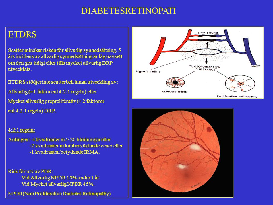 DIABETESRETINOPATI ETDRS ASA (650 mg/dag) påverkar inte förloppet vid DRP.