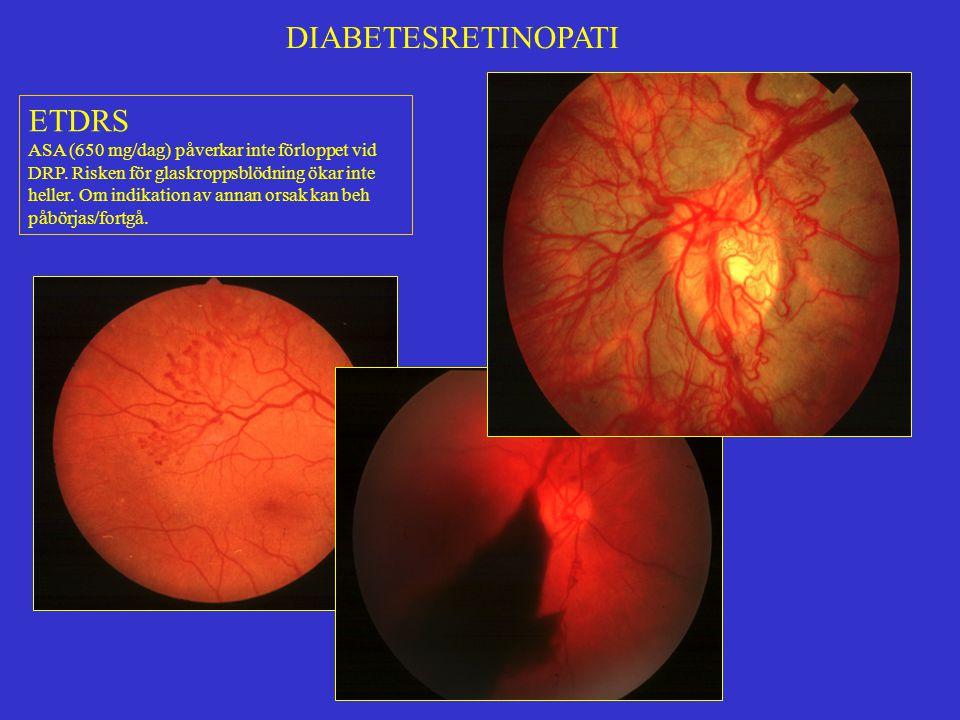 DIABETESRETINOPATI DRS (Diabetic Retinopathy study) PDR (Proliferative Diabetic Rethinopathy): Nybildade kärl +/- bindväv från retina/synnerv/iris (NVE, NVD resp NVI).