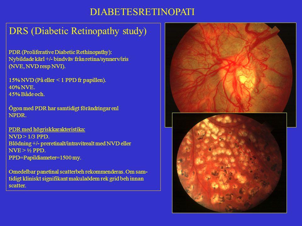 DIABETESRETINOPATI DRS (Diabetic Retinopathy study) PDR (Proliferative Diabetic Rethinopathy): Nybildade kärl +/- bindväv från retina/synnerv/iris (NV