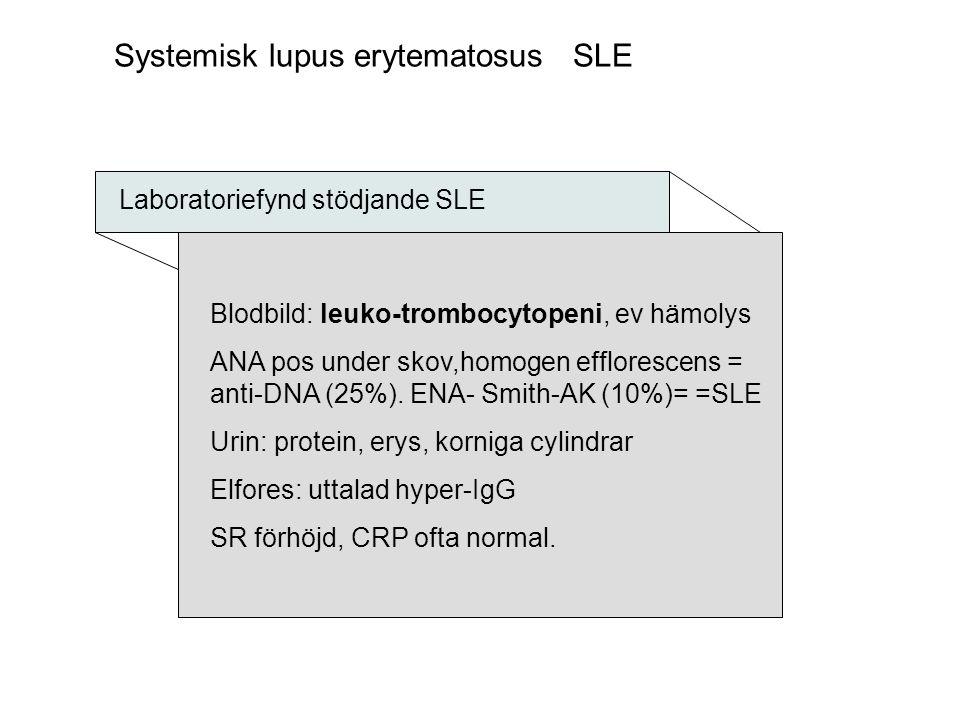 Systemisk lupus erytematosus SLE Laboratoriefynd stödjande SLE Blodbild: leuko-trombocytopeni, ev hämolys ANA pos under skov,homogen efflorescens = an