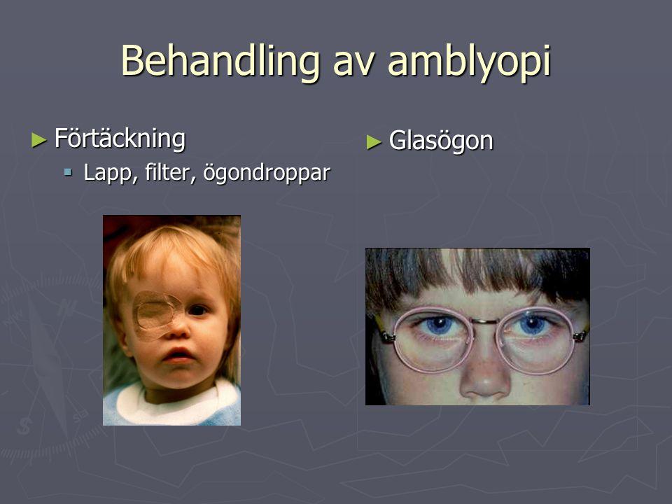 Behandling av amblyopi ► Förtäckning  Lapp, filter, ögondroppar ► Glasögon