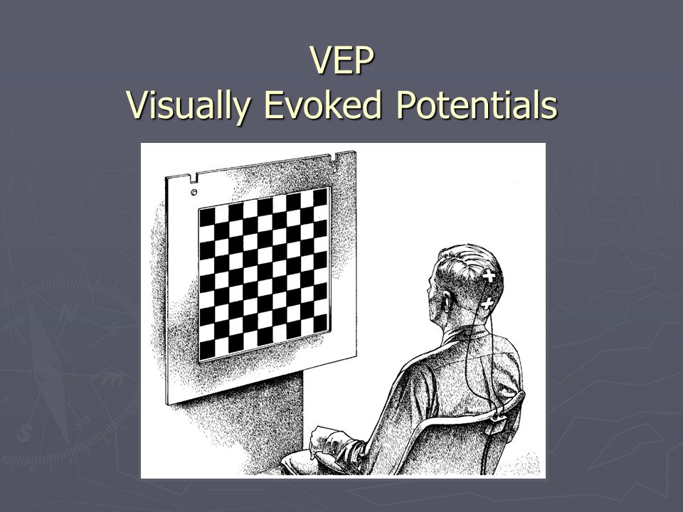 VEP Visually Evoked Potentials