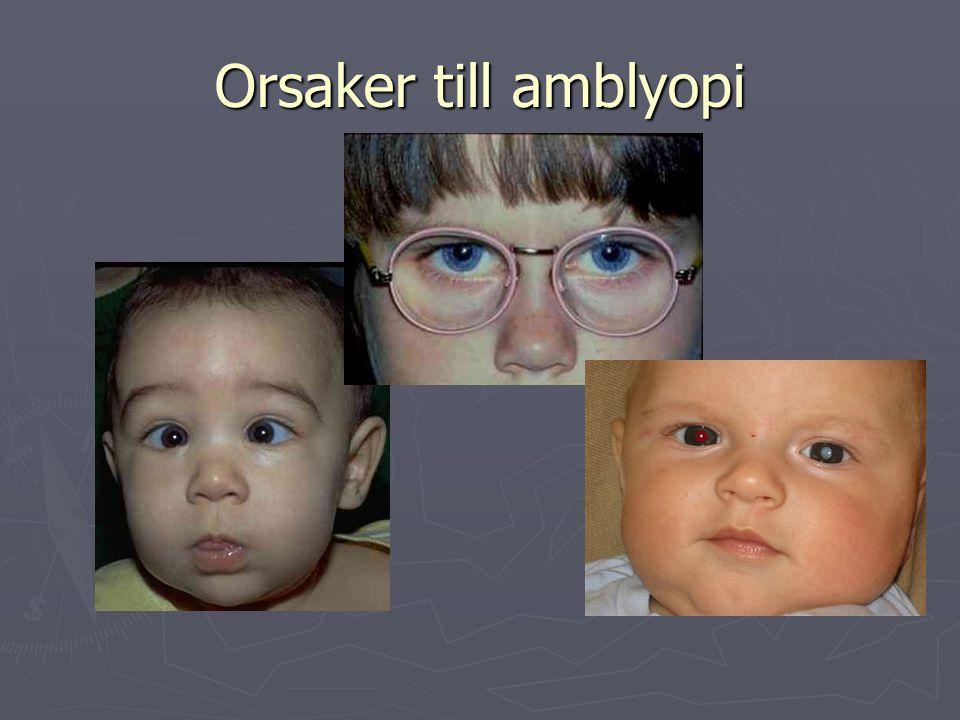 Orsaker till amblyopi