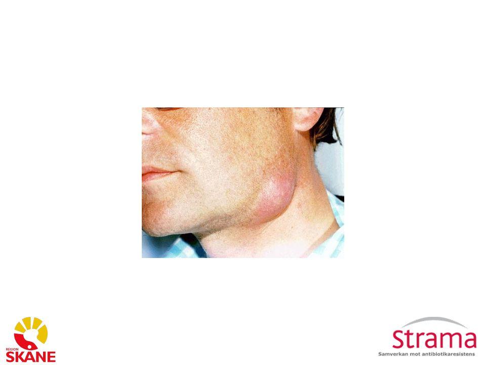 Abscess Etiologi: S.aureus ( Tänk diff diagnoser och andra agens ex.