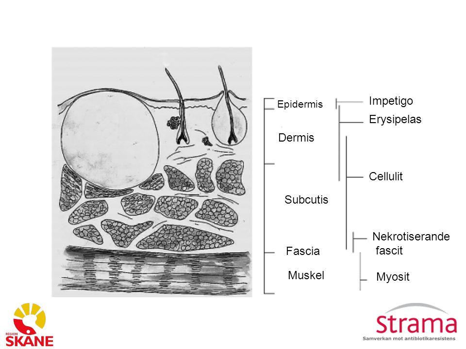Epidermis Dermis Subcutis Muskel Fascia Impetigo Erysipelas Cellulit Nekrotiserande fascit Myosit