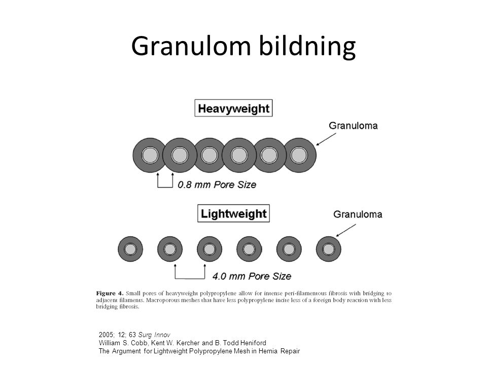 Granulom bildning 2005; 12; 63 Surg Innov William S. Cobb, Kent W. Kercher and B. Todd Heniford The Argument for Lightweight Polypropylene Mesh in Her