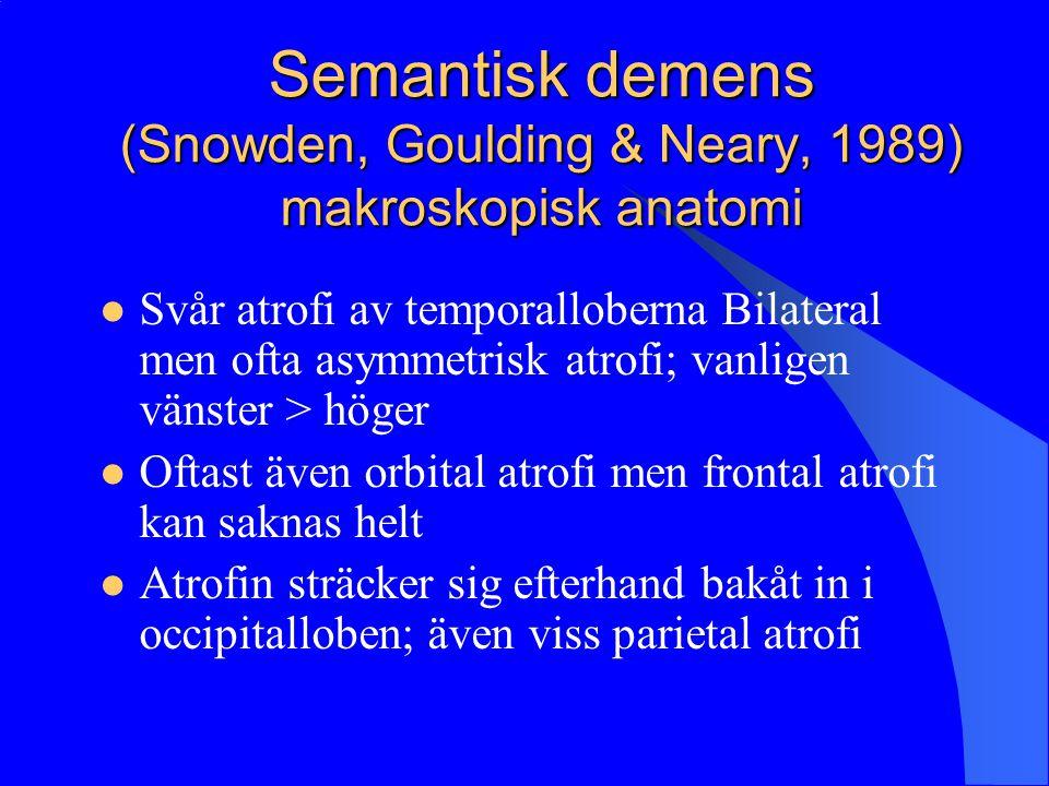 Semantisk demens (Snowden, Goulding & Neary, 1989) makroskopisk anatomi Svår atrofi av temporalloberna Bilateral men ofta asymmetrisk atrofi; vanligen vänster > höger Oftast även orbital atrofi men frontal atrofi kan saknas helt Atrofin sträcker sig efterhand bakåt in i occipitalloben; även viss parietal atrofi