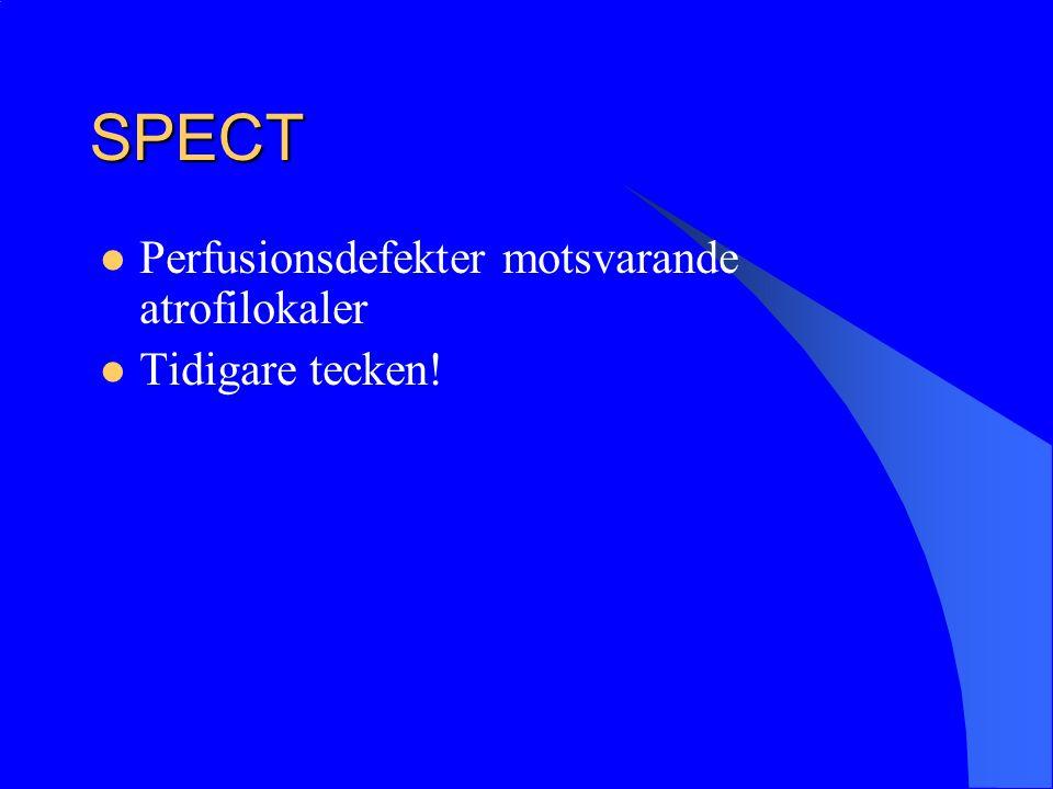 SPECT Perfusionsdefekter motsvarande atrofilokaler Tidigare tecken!