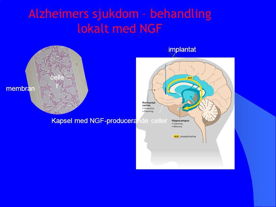Alzheimers sjukdom – behandling lokalt med NGF implantat Kapsel med NGF-producerande celler membran celle r