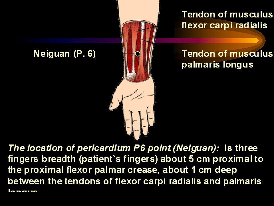 Konklusion P6- akupressur ökar tolerans för experimentell emetisk stimulering hos kvinnor med åksjuka jämförd med kontroll gruppen men inte med placebo P6 akupressur reducerar antal symptom av åksjuka