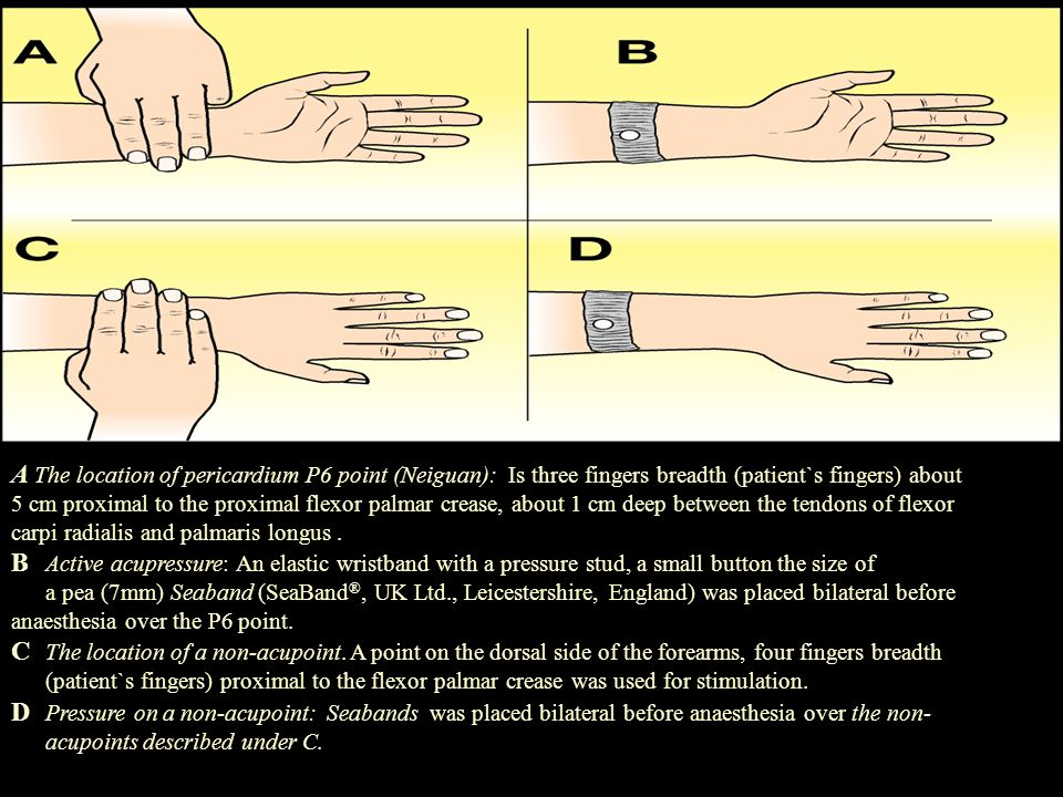 A The location of pericardium P6 point (Neiguan): Is three fingers breadth (patient`s fingers) about 5 cm proximal to the proximal flexor palmar creas