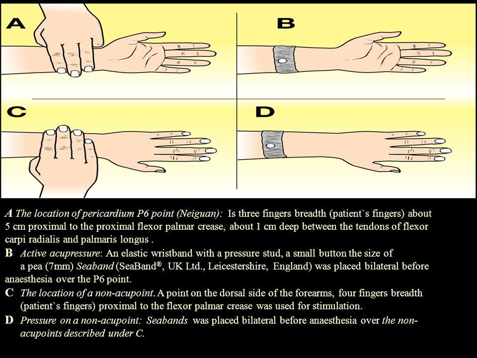  Det är möjligt att stimulering kan leda till utsöndring av neurokemiska substanser som i sin tur desensitiserar Chemoreceptor trygger zone (CTZ) i hjärnan och förhindrar att PONV upplevs  Har effekt på parasympatikus  Reducerar gastric tackyarrhythmias  Beta-endorfin stiger i spinal vätskan efter akupunktur- stimulering (Clement-Jones 1980) Akupunktur/akupressur mekanism