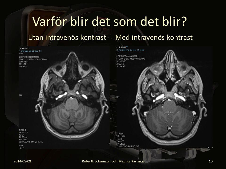 Varför blir det som det blir? Utan intravenös kontrast 2014-05-09Roberth Johansson och Magnus Karlsson10 Med intravenös kontrast