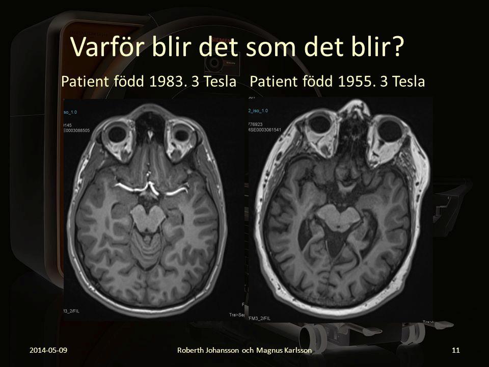 Varför blir det som det blir? Patient född 1983. 3 Tesla 2014-05-09Roberth Johansson och Magnus Karlsson11 Patient född 1955. 3 Tesla