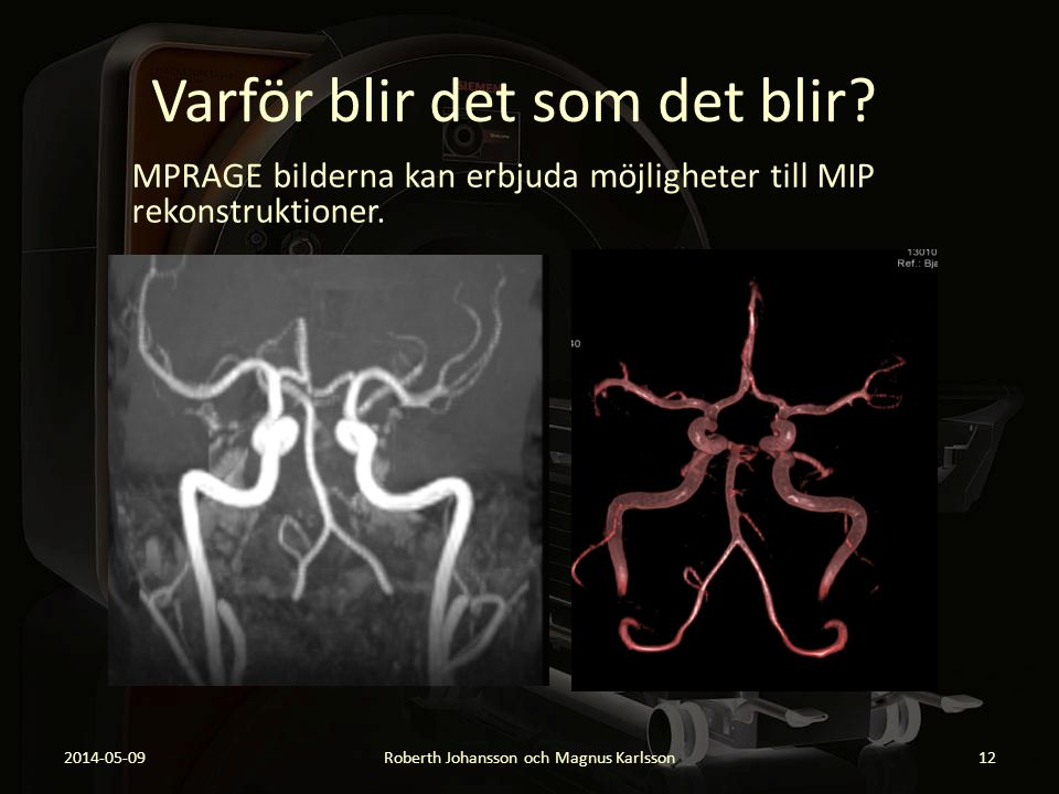 Varför blir det som det blir? MPRAGE bilderna kan erbjuda möjligheter till MIP rekonstruktioner. 2014-05-09Roberth Johansson och Magnus Karlsson12