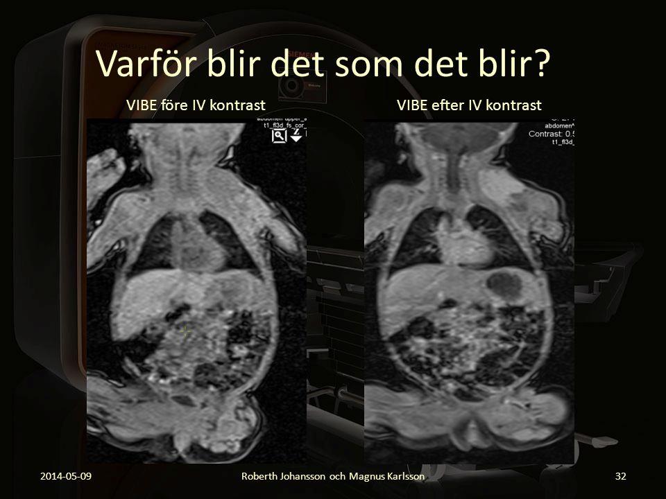 Varför blir det som det blir? 2014-05-09Roberth Johansson och Magnus Karlsson32 VIBE före IV kontrast VIBE efter IV kontrast