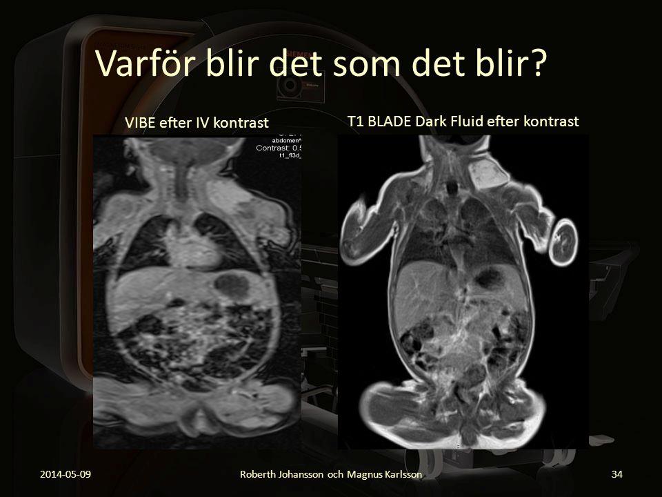 Varför blir det som det blir? 2014-05-09Roberth Johansson och Magnus Karlsson34 VIBE efter IV kontrast T1 BLADE Dark Fluid efter kontrast