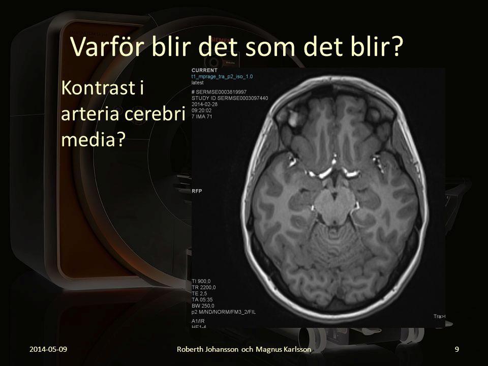 Varför blir det som det blir? Kontrast i arteria cerebri media? 2014-05-09Roberth Johansson och Magnus Karlsson9