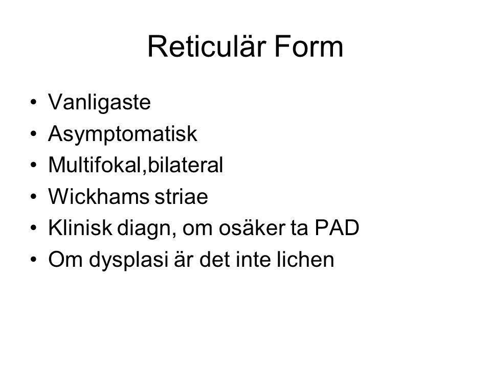 Reticulär Form Vanligaste Asymptomatisk Multifokal,bilateral Wickhams striae Klinisk diagn, om osäker ta PAD Om dysplasi är det inte lichen