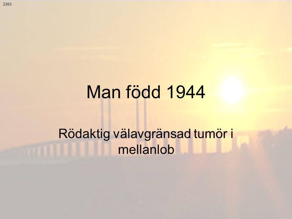 Man född 1944 Rödaktig välavgränsad tumör i mellanlob 2363