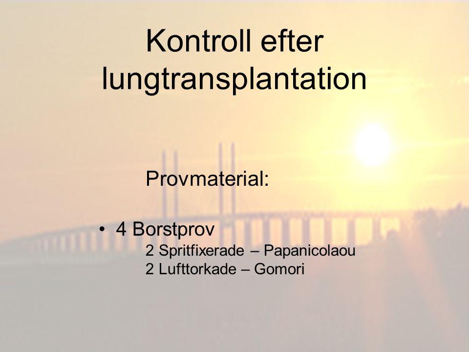 Kontroll efter lungtransplantation Provmaterial: BAL (Bronkoalveolärt lavage) 1 Spritfixerat – Papanicolaou 1 Lufttorkat – Gomori