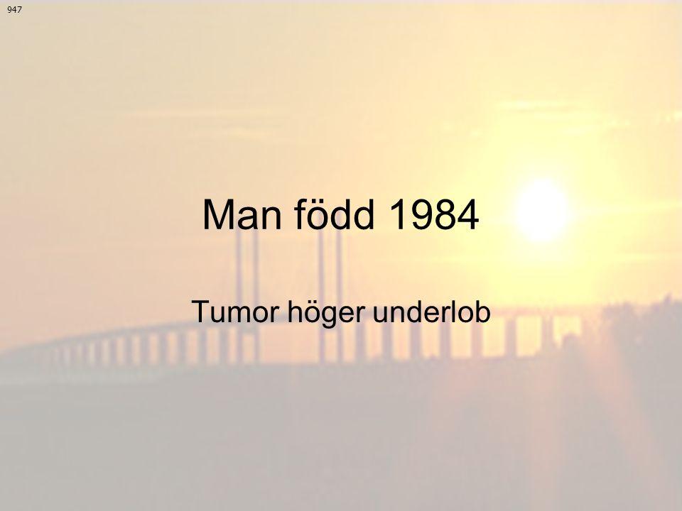 Man född 1984 Tumor höger underlob 947