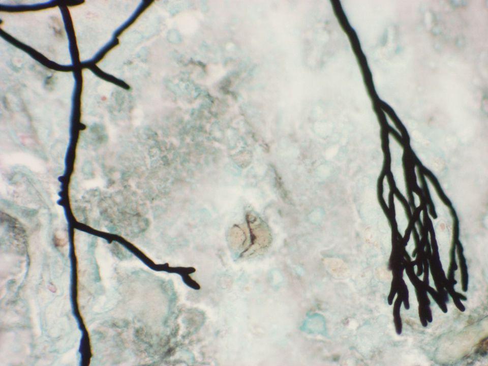Diagnos 753 Borstprov: Carcinoid Punktat skuldra: Carcinoid Histologi: Carcinoid