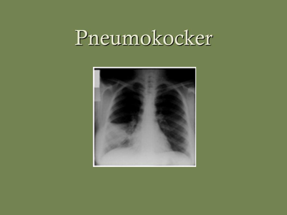 Pneumokocker