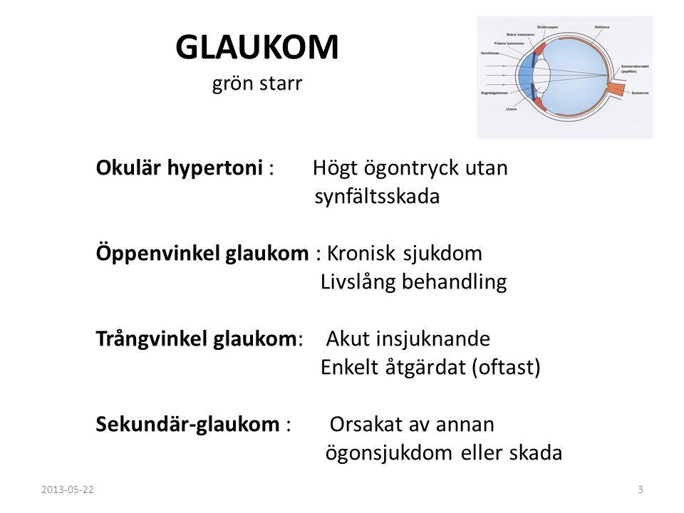 Öppenvinkel glaukom Den vanligaste formen av glaukom Inga symtom i tidigt stadium Kammarvatten filtreras inte ut ur ögat i samma takt som det produceras Ofta högt tryck i ett eller båda ögonen Synfältspåverkan ( måste finnas enligt definition) Oftast långsam progress 2013-05-224