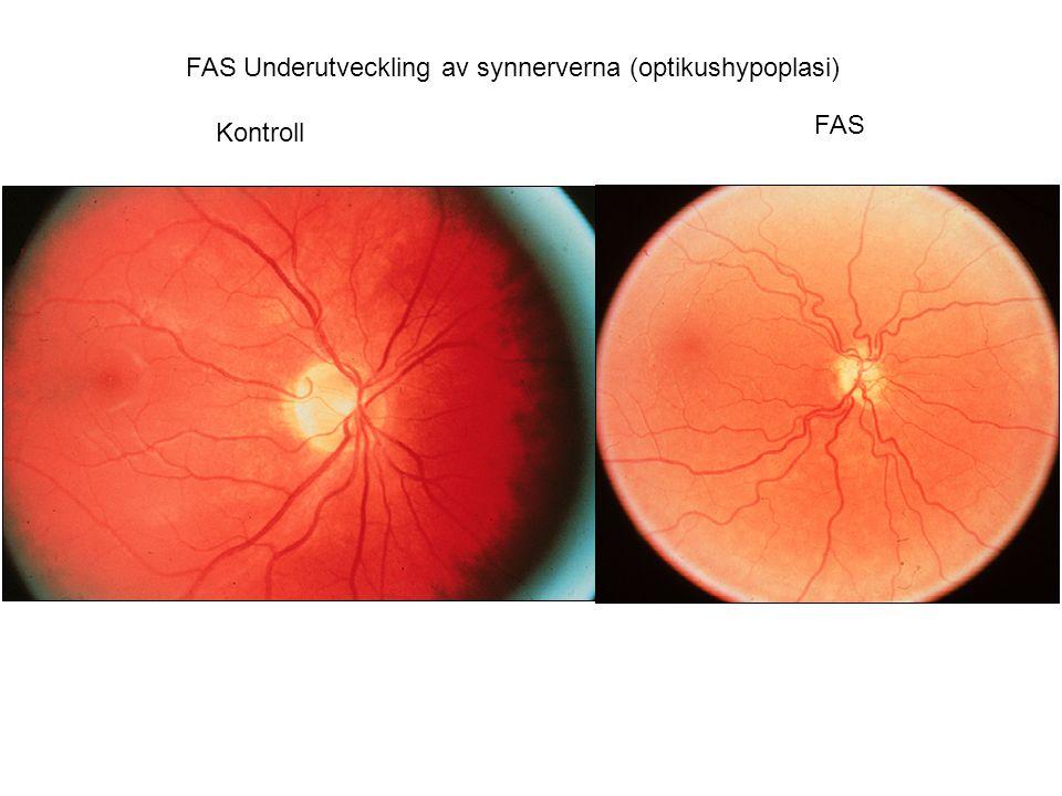 FAS Underutveckling av synnerverna (optikushypoplasi) Kontroll FAS