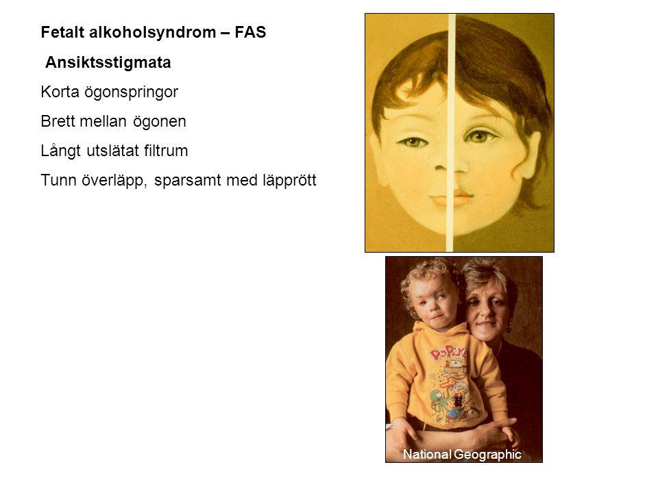 Fetalt alkoholsyndrom – FAS Ansiktsstigmata Korta ögonspringor Brett mellan ögonen Långt utslätat filtrum Tunn överläpp, sparsamt med läpprött Nationa