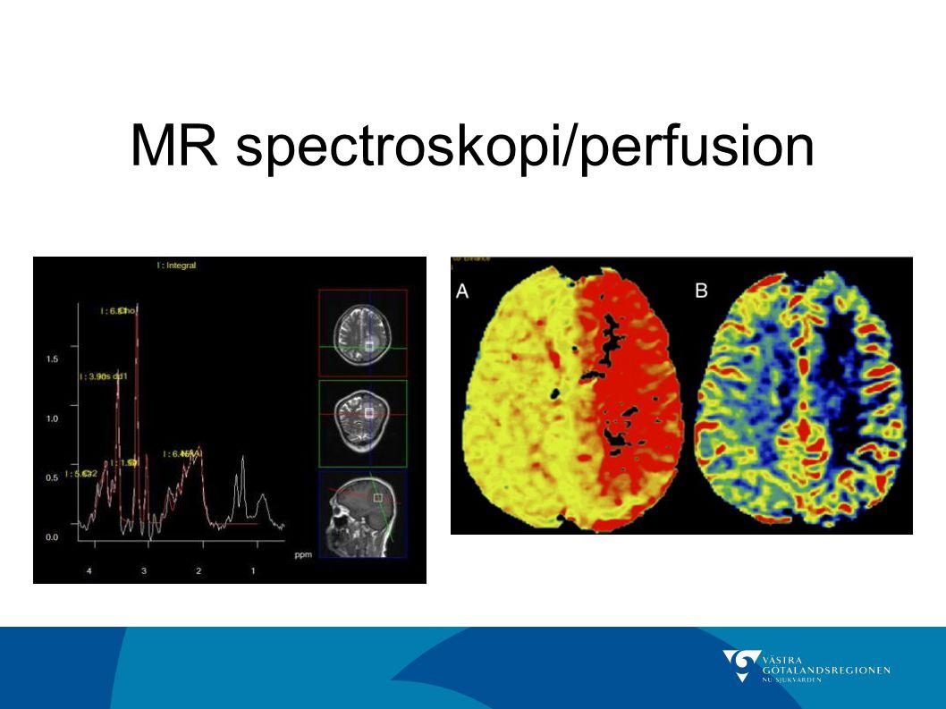MR spectroskopi/perfusion