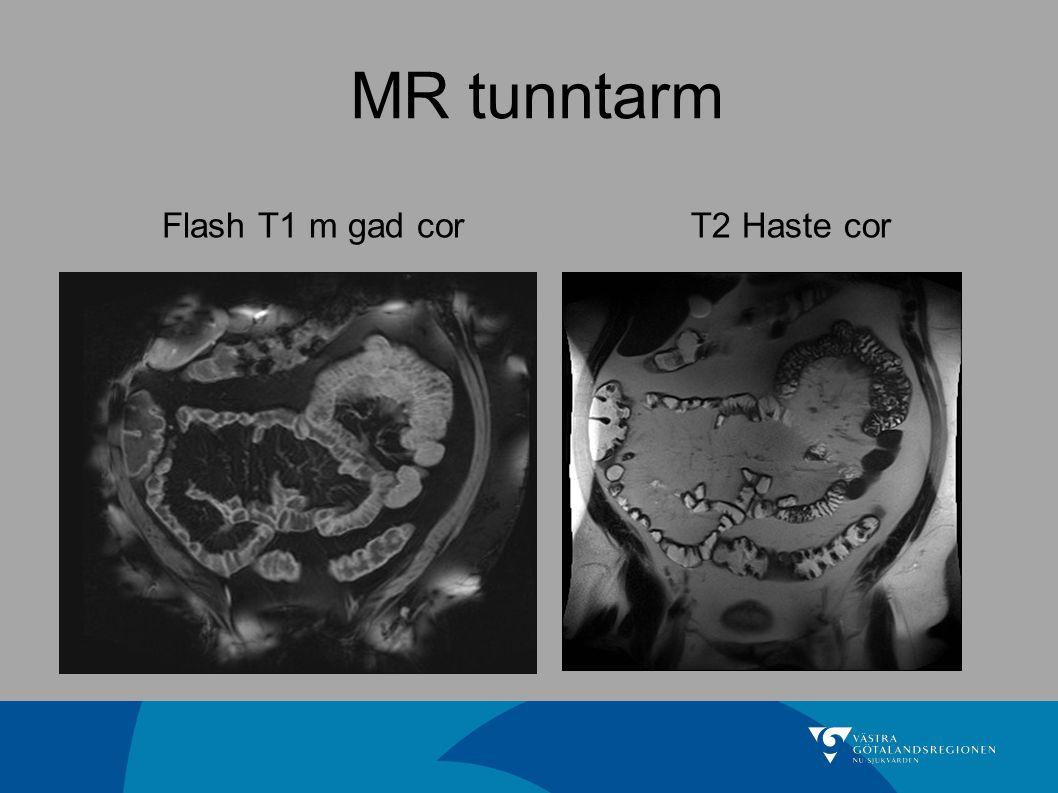 MR tunntarm Flash T1 m gad cor T2 Haste cor