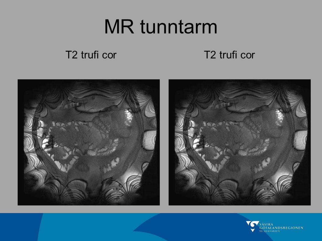 MR tunntarm T2 trufi cor