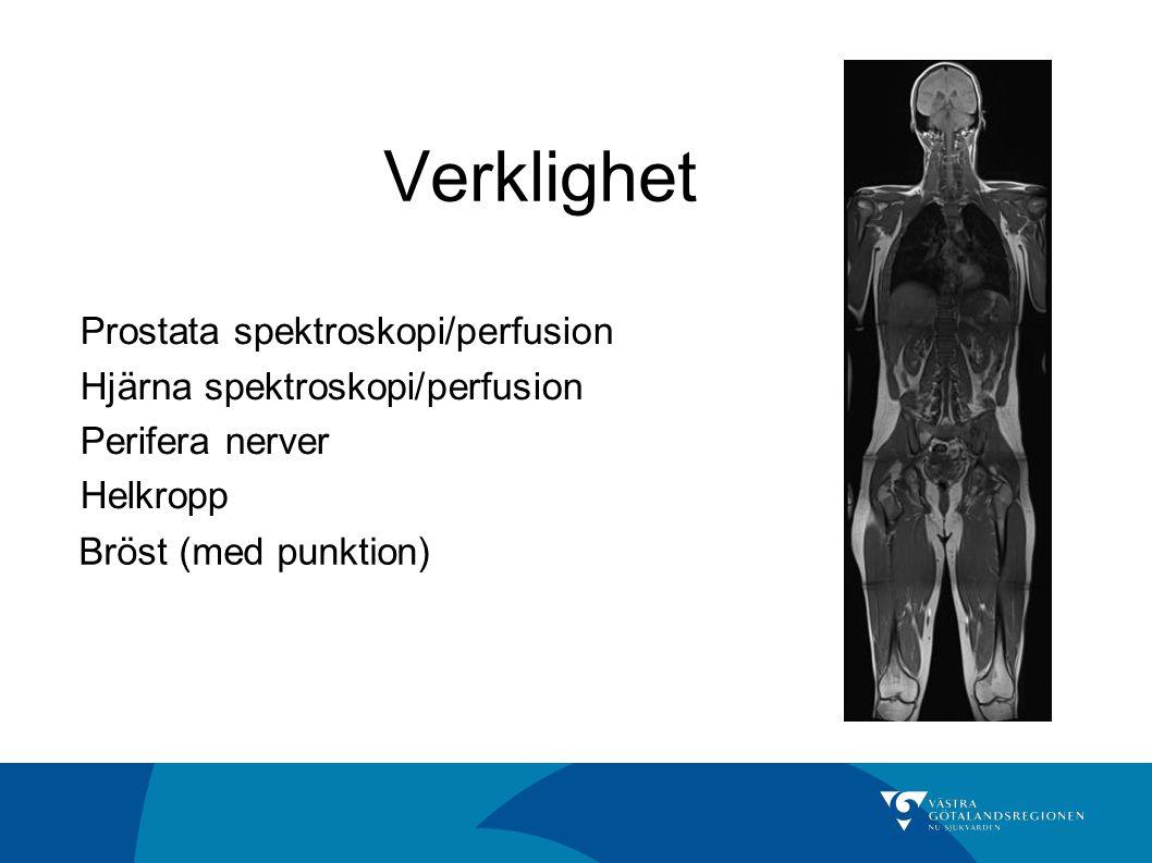 Verklighet Prostata spektroskopi/perfusion Hjärna spektroskopi/perfusion Perifera nerver Helkropp Bröst (med punktion)