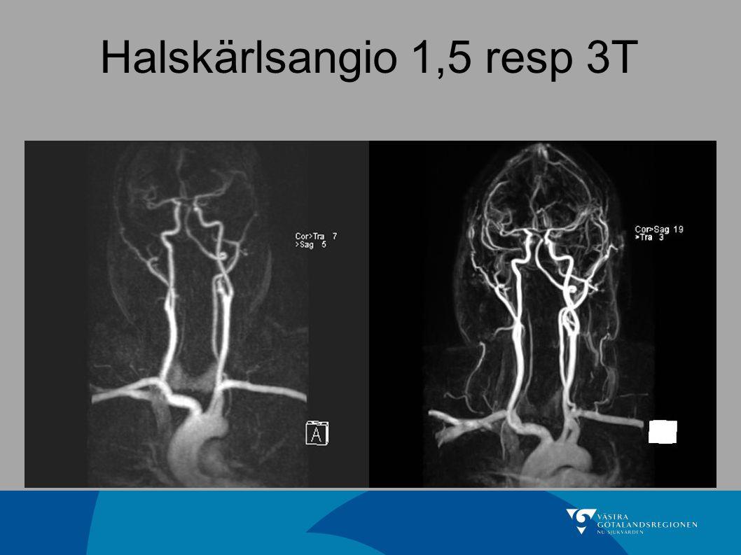 Halskärlsangio 1,5 resp 3T