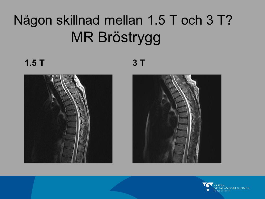 Någon skillnad mellan 1.5 T och 3 T? MR Bröstrygg 1.5 T3 T